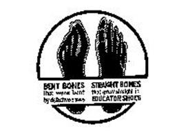 BENT BONES THAT WERE BENT BY DEFECTIVE SHOES STRAIGHT BONES THAT GREW STRAIGHT IN EDUCATOR SHOES