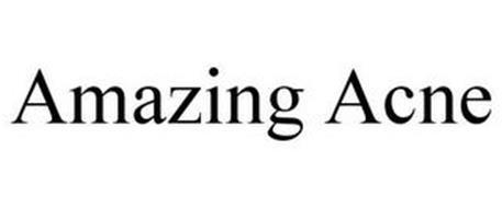 AMAZING ACNE
